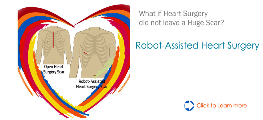 robotic-assisted-heart-surge